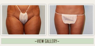 liposuction view