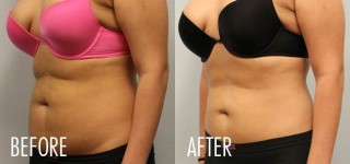 Common Misperceptions about Liposuction