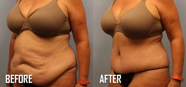 Why Have A Tummy Tuck After You Ve Lost The Weight Plastic