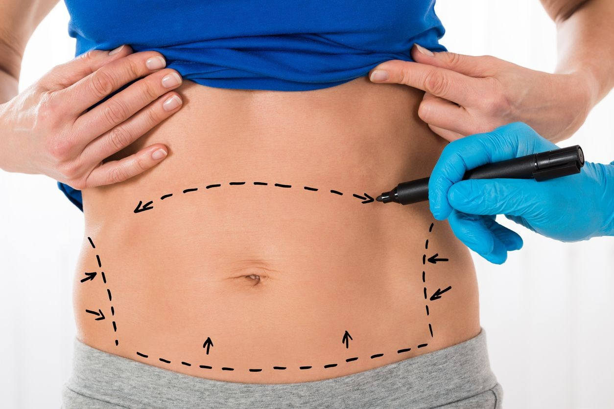 tummy tuck benefits