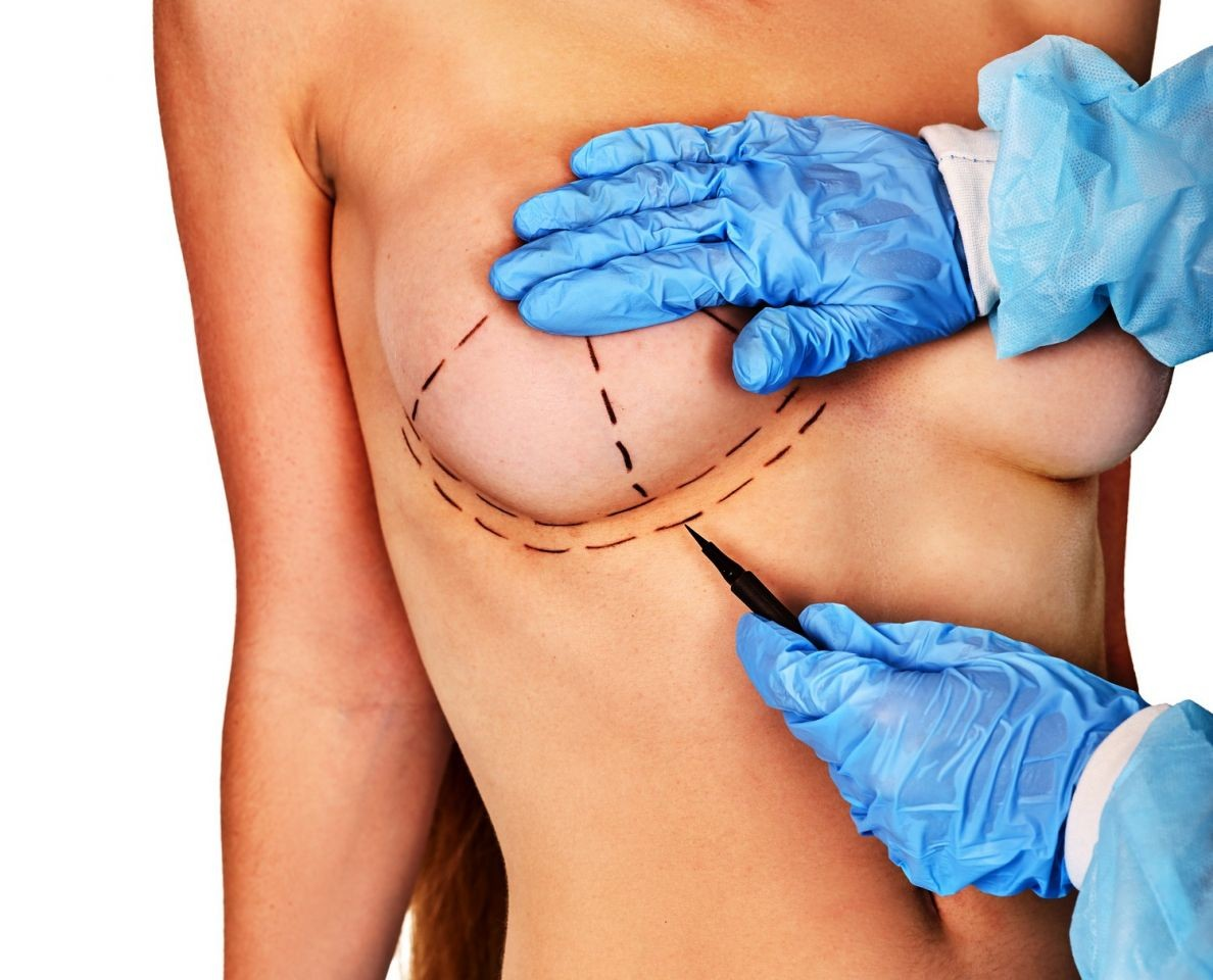 breast-augmentation-scar