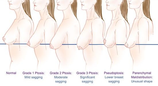 breast-ptosis